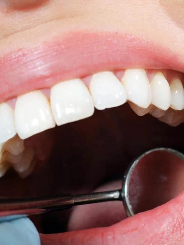 Gebitsreparatie - van Aalst tandtechniek Hoeksche Waard