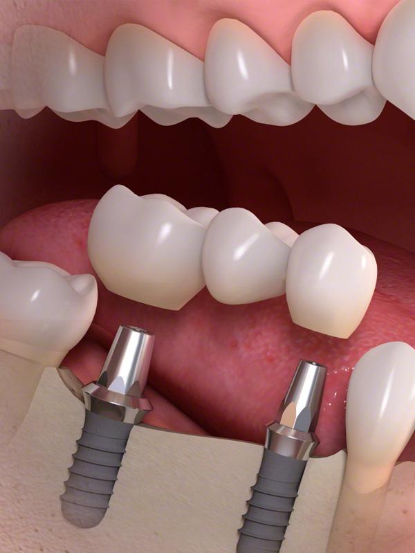 Tandimplantaten - van Aalst tandtechniek Hoeksche Waard